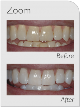 teeth whitening treatment services in Canberra